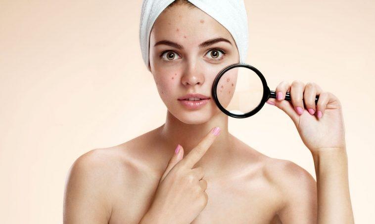 Kem trị mụn, chống lão hóa da Obagi Tre Cream 0.05% 20g bán chạy số 1 tại Hoa Kỳ-hibeauty