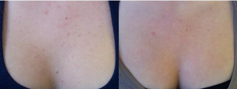 Chai xịt trị mụn vùng ngực và lưng Aknicare CB Chest & Back 100ml được ưa chuộng số 1 tại Ý-hibeauty