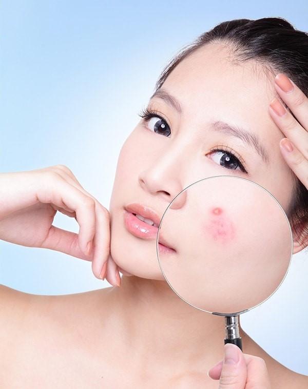 Gel trị mụn dạng lăn Aknicare Skin Roller 5ml được ưa chuộng số 1 tại Ý-hibeauty