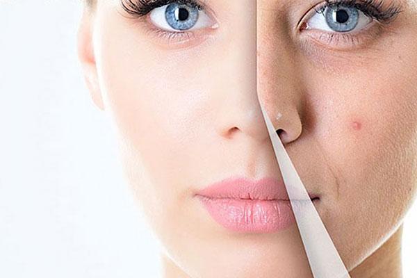 Paula's Choice Clear Extra Strength Anti-Redness Exfoliating Solution With 2% Salicylic Acid
