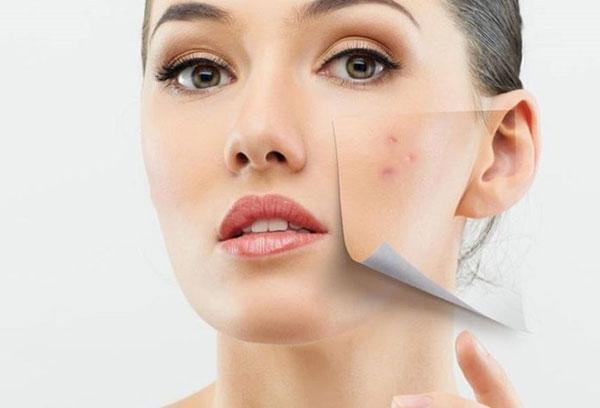 Paula's Choice Clear Regular Strength Anti-Redness Exfoliating Solution 2% Salicylic Acid