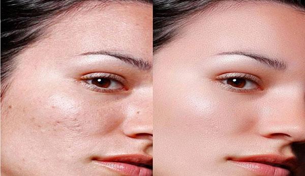 Retacnyl Tretinoin Cream 0.05% Galderma